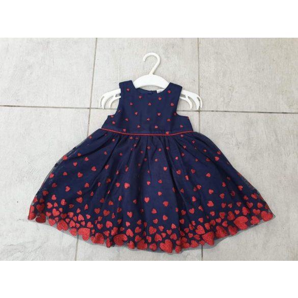 Új H&M ruha 214936